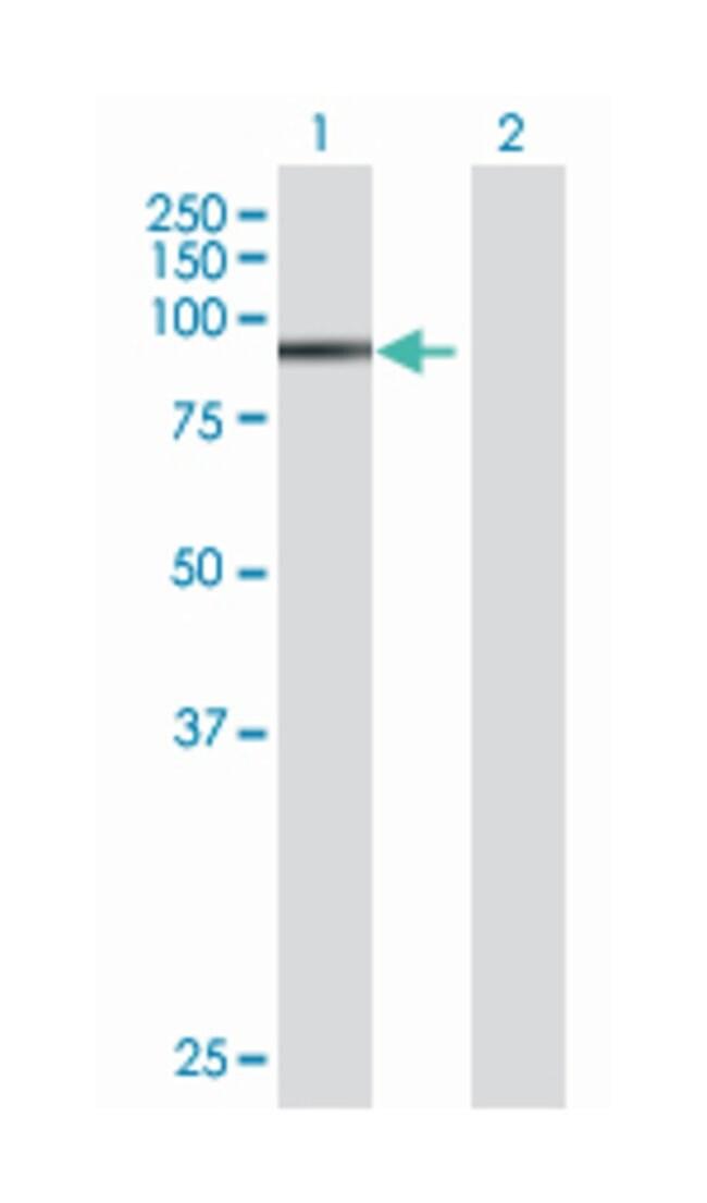 zinc finger protein 606, Mouse, Polyclonal Antibody, Abnova 50µL;