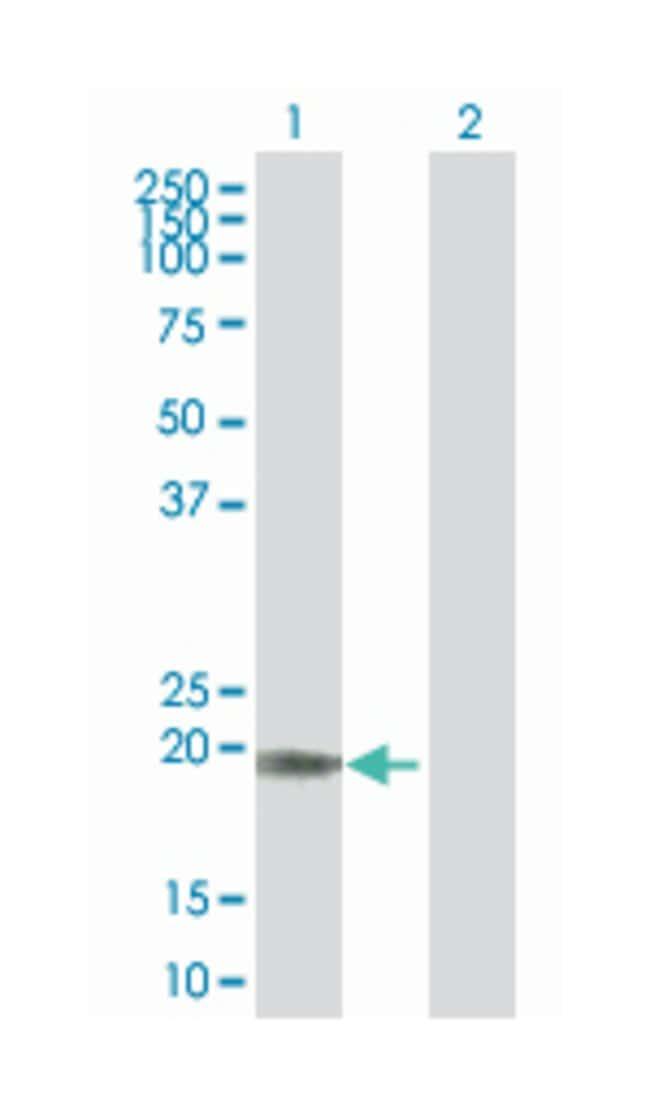 dehydrogenase/reductase (SDR family) member 11 (B01), Mouse anti-Human,