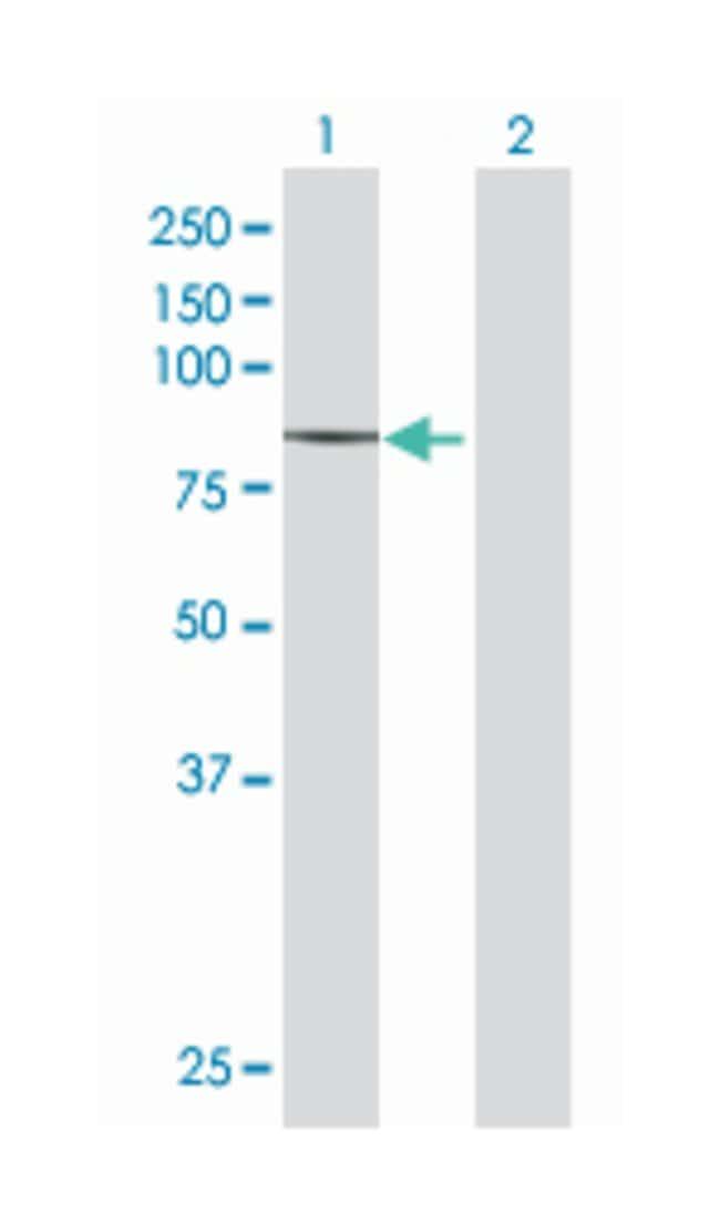 zinc finger protein 624, Mouse, Polyclonal Antibody, Abnova 50µL;