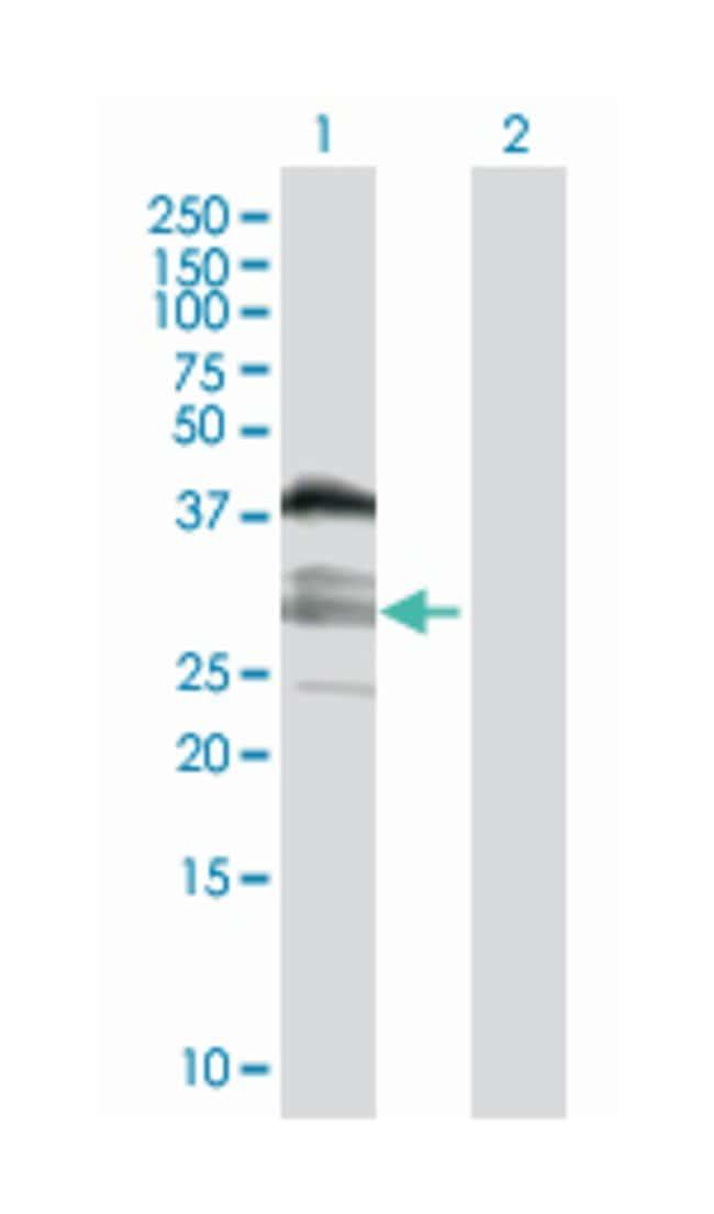 chromosome 10 open reading frame 81, Mouse, Polyclonal Antibody, Abnova