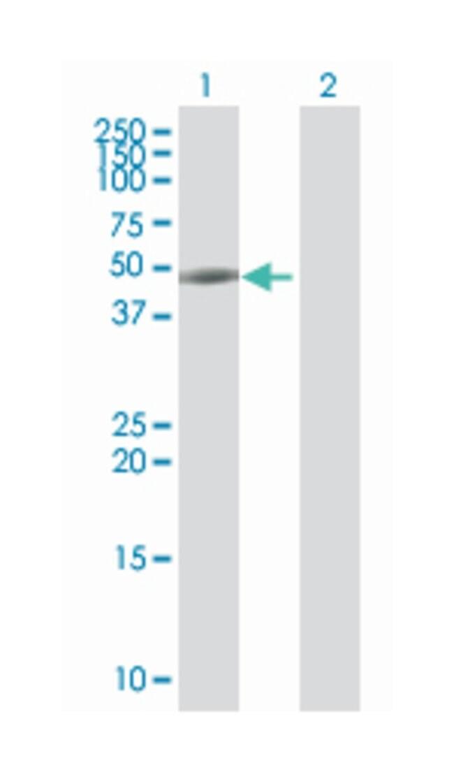 keratin 20, Mouse, Polyclonal Antibody, Abnova 50µL; Unlabeled