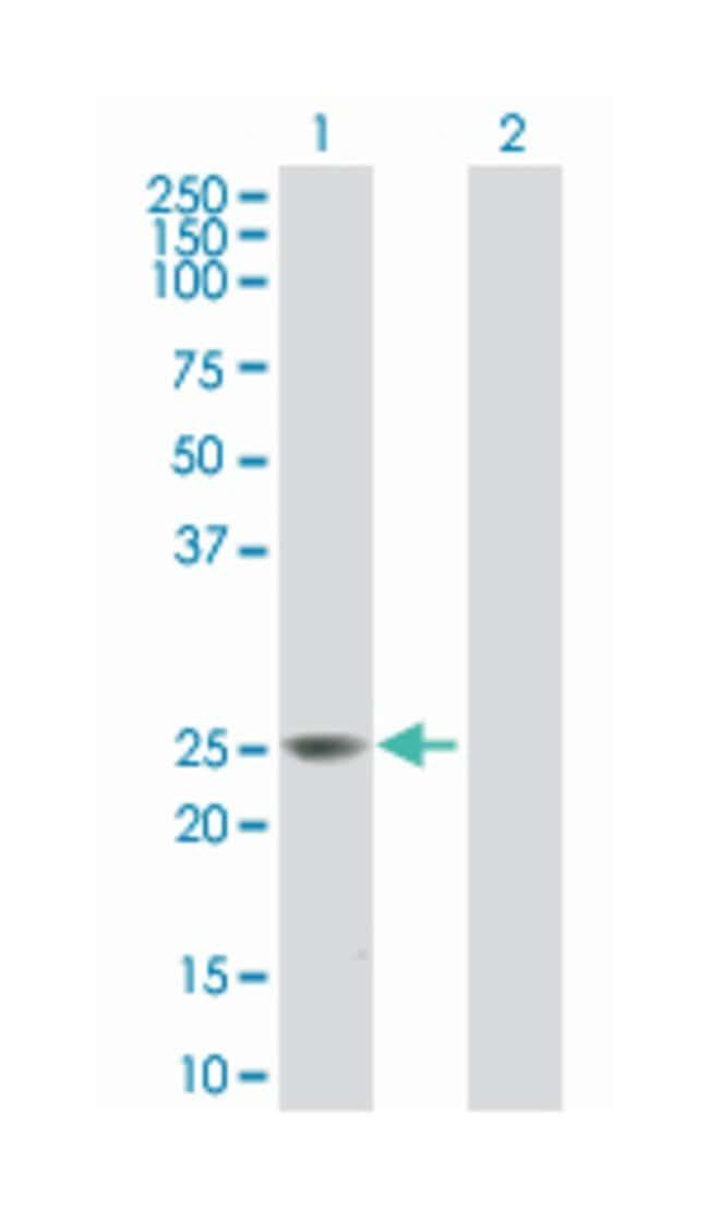 B-cell receptor-associated protein 29, Mouse, Polyclonal Antibody, Abnova