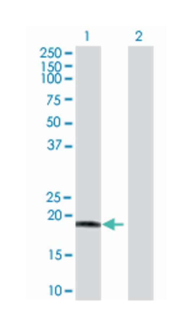 chromosome 9 open reading frame 89, Mouse, Polyclonal Antibody, Abnova