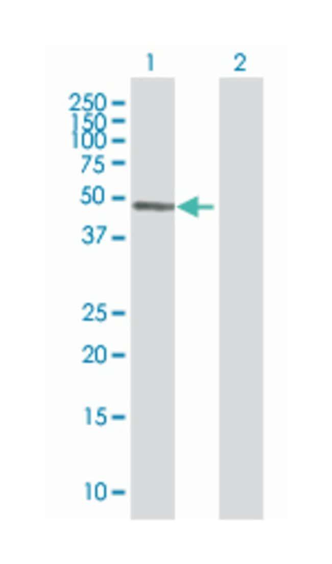 immunoglobin superfamily, member 21 (B01), Mouse anti-Human, Polyclonal