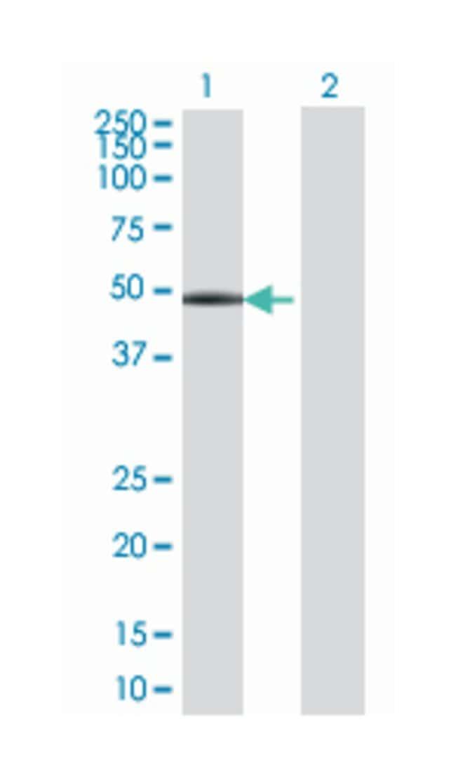 OTU domain containing 7B, Mouse, Polyclonal Antibody, Abnova 50µL;