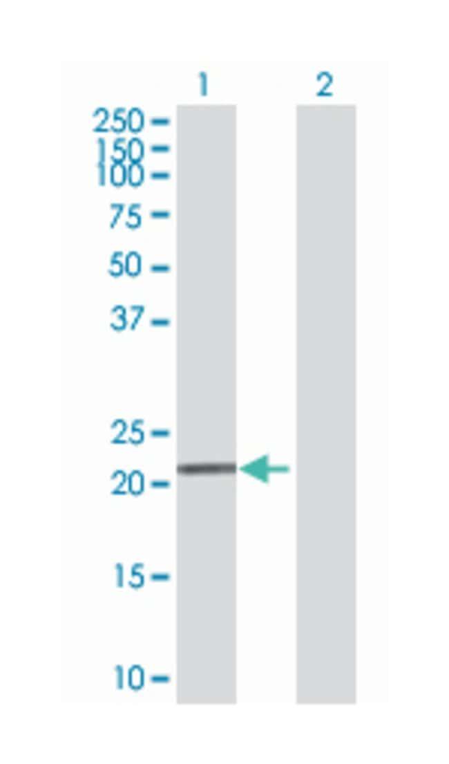 phosphopantothenoylcysteine decarboxylase, Mouse, Polyclonal Antibody,