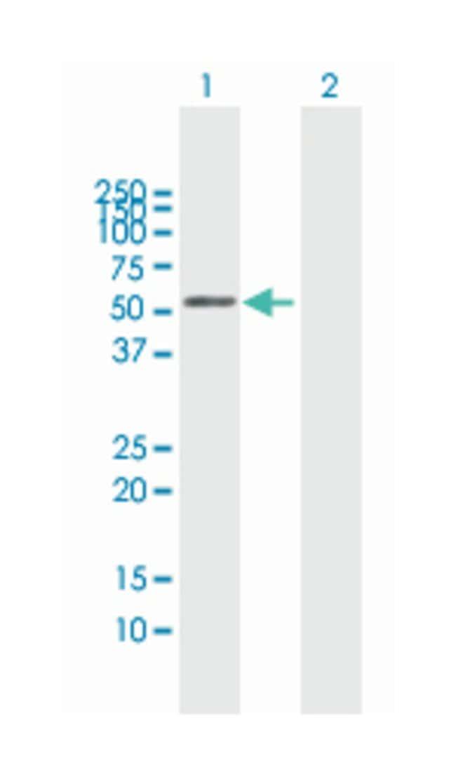 BRCA2 and CDKN1A interacting protein, Mouse, Polyclonal Antibody, Abnova