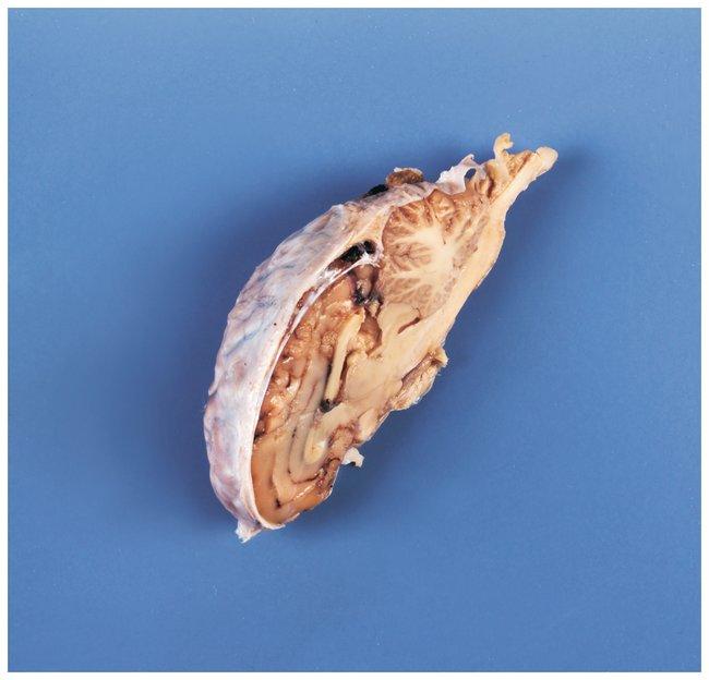 CarolinaFormalin Preserved Sheep Half Brain Sheep half brain formalin preserved