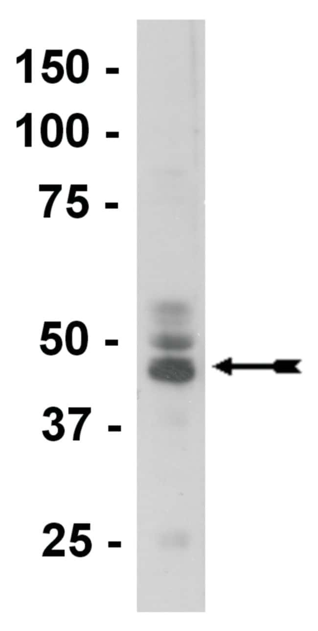 MilliporeSigma anti-Tau (3-repeat isoform RD3), Clone: 8E6/C11,  (Upstate)