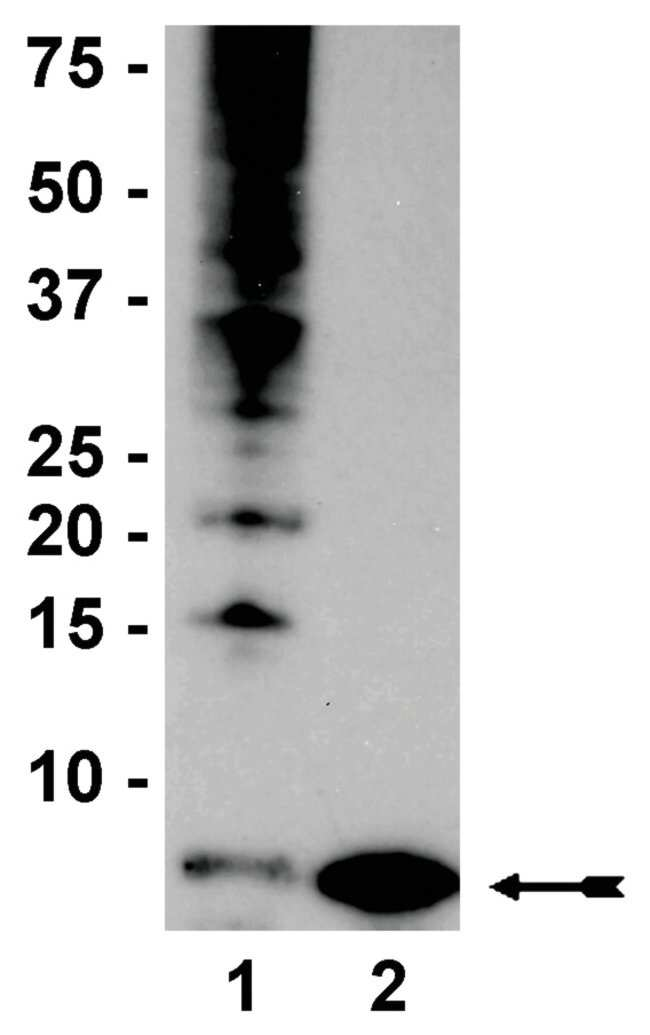 MilliporeSigma anti-Ubiquitin, Clone: P4D1-A11,  (Upstate)  100µg;
