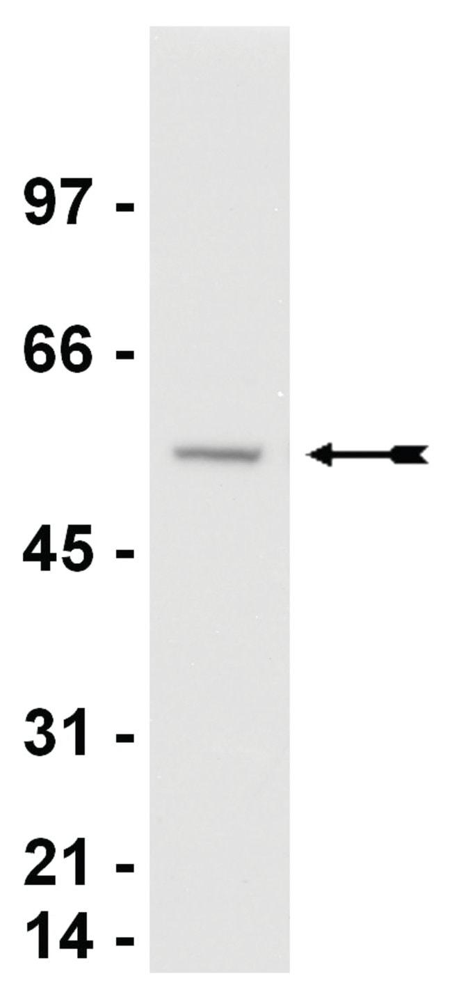 MilliporeSigma anti-Calreticulin Ab-2; Polyclonal;  (Upstate)  200µg;
