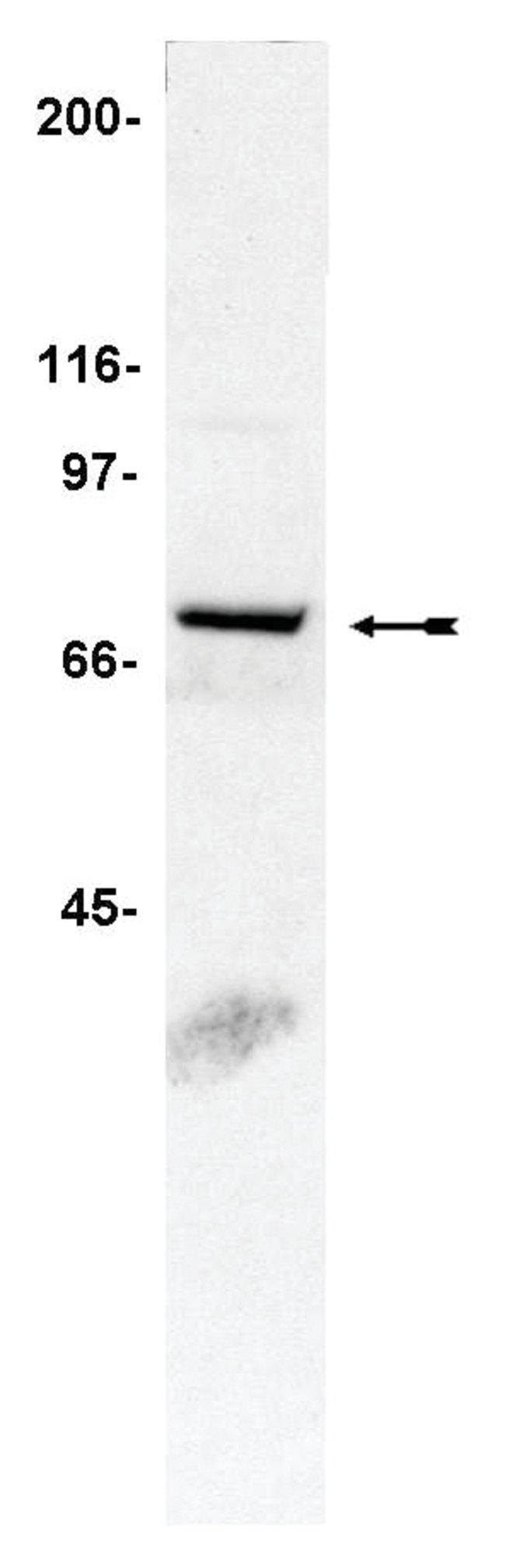 MilliporeSigma anti-NADPH Oxidase (phox) (gp91); Polyclonal;  (Upstate)