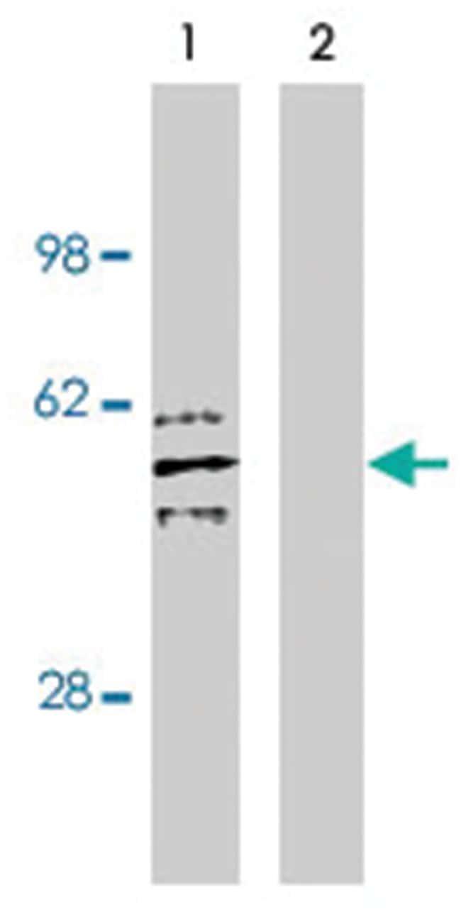 SGMS2, Rabbit, Polyclonal Antibody, Abnova™ 100μg; Unlabeled Primary Antibodies Sa to Sg