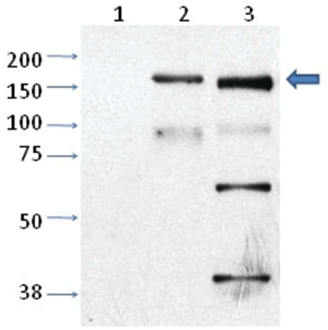 Trpm2 Rabbit anti-Mouse, Rat, Polyclonal Antibody, Abnova 100µL; Unlabeled:Life