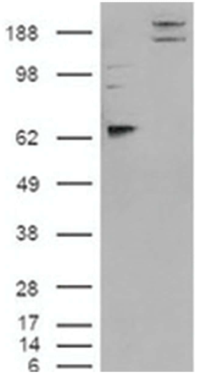 CADM1, Rabbit, Polyclonal Antibody, Abnova 100µL; Unlabeled:Life Sciences