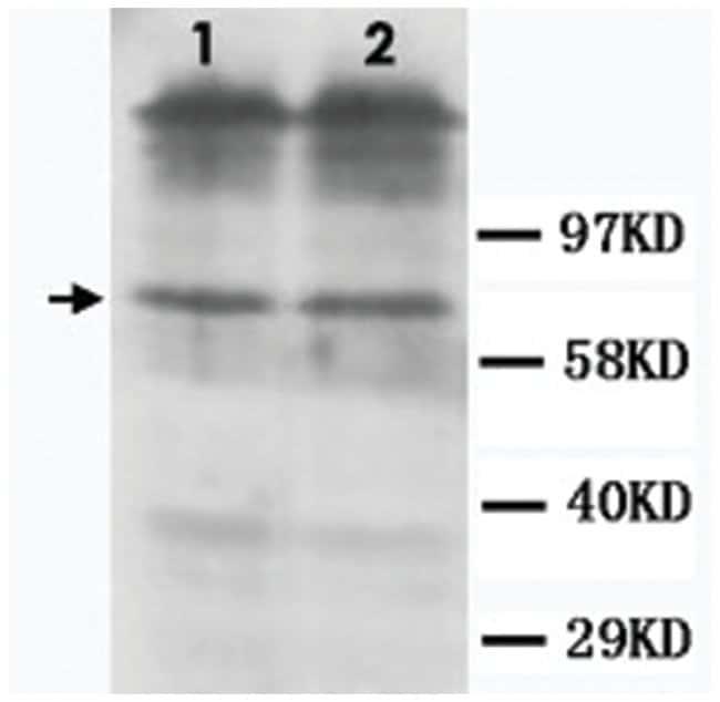 DRD1 Rabbit anti-Human, Mouse, Rat, Polyclonal Antibody, Abnova 100µg;