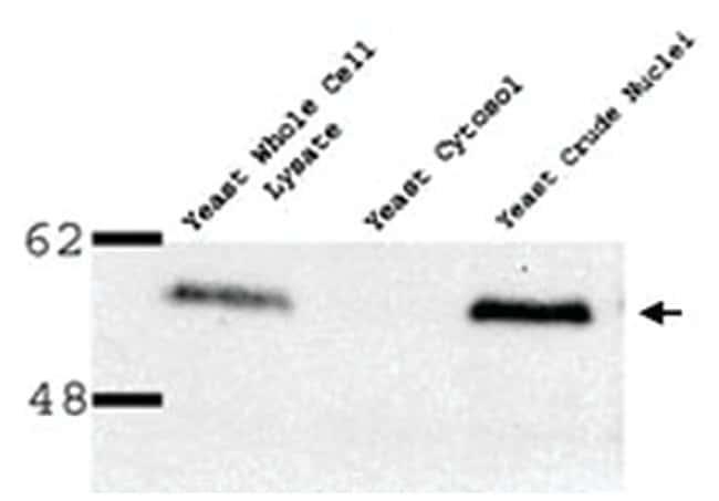 NUP53, Rabbit, Polyclonal Antibody, Abnova 100µL; Unlabeled:Life Sciences