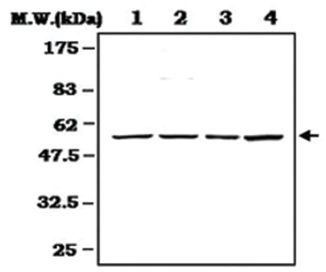 CCNE1 Rabbit anti-Human, Mouse, Rat, Polyclonal Antibody, Abnova 100µL;