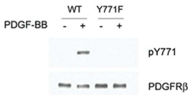 PDGFRB (phospho Y771), Rabbit anti-Human, Mouse, Polyclonal Antibody, Abnova