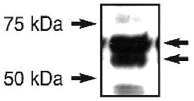 ERO1L, Rabbit, Polyclonal Antibody, Abnova 100µL; Unlabeled:Life Sciences