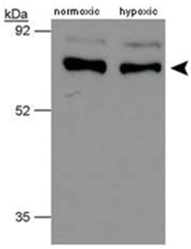 P4HTM, Rabbit, Polyclonal Antibody, Abnova 100µL; Unlabeled:Life Sciences