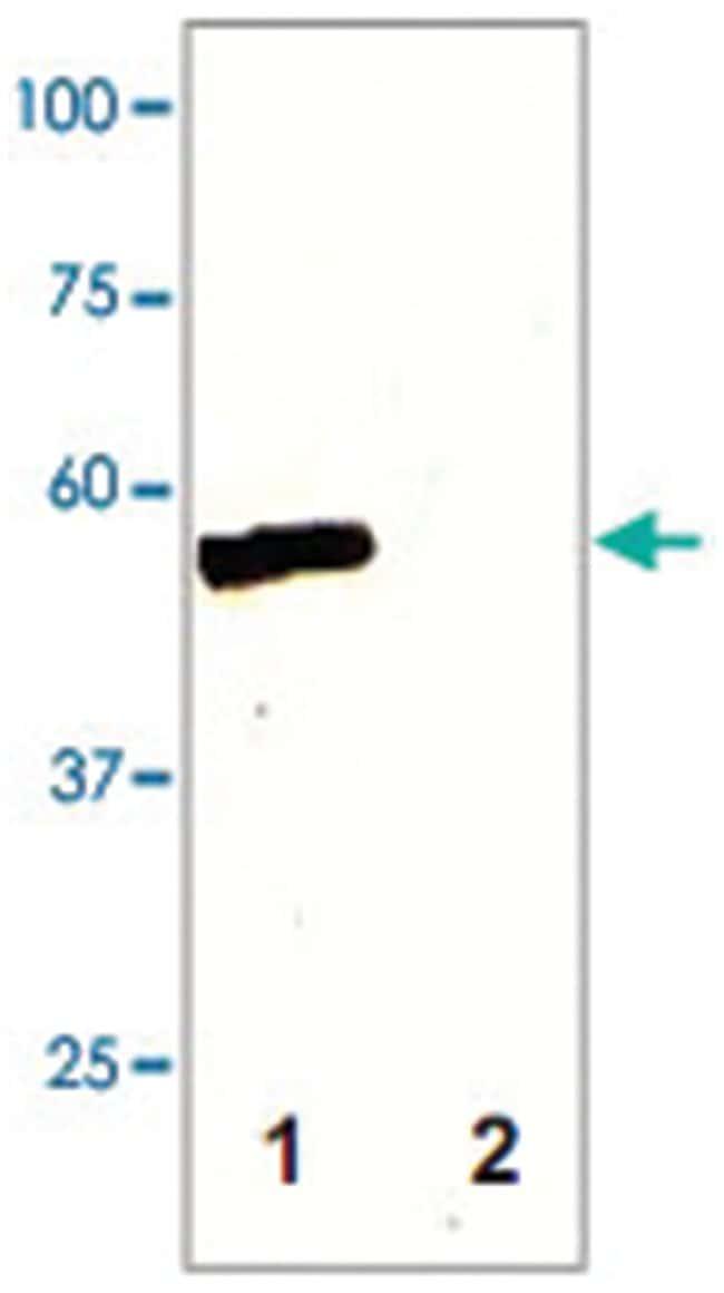 MAP2K5 Rabbit anti-Chicken, Human, Mouse, Rat, Polyclonal Antibody, Abnova