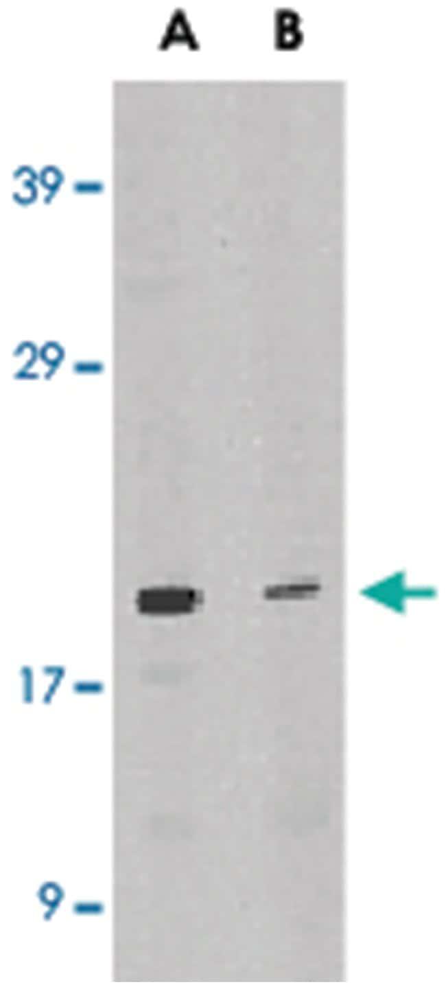 IL21 Rabbit anti-Human, Polyclonal Antibody, Abnova 100µg; Unlabeled:Life