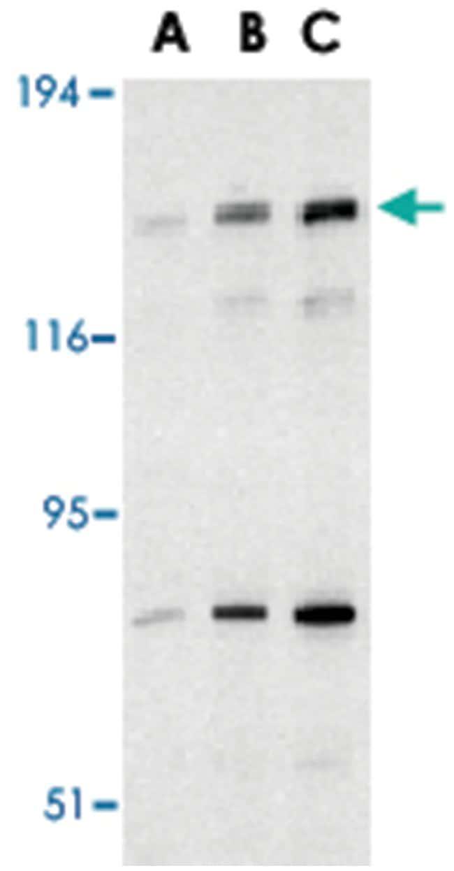 NAIP Rabbit anti-Human, Polyclonal Antibody, Abnova 100µg; Unlabeled:Life