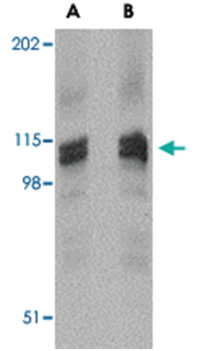 DLGAP3, Rabbit, Polyclonal Antibody, Abnova 100µg; Unlabeled:Life