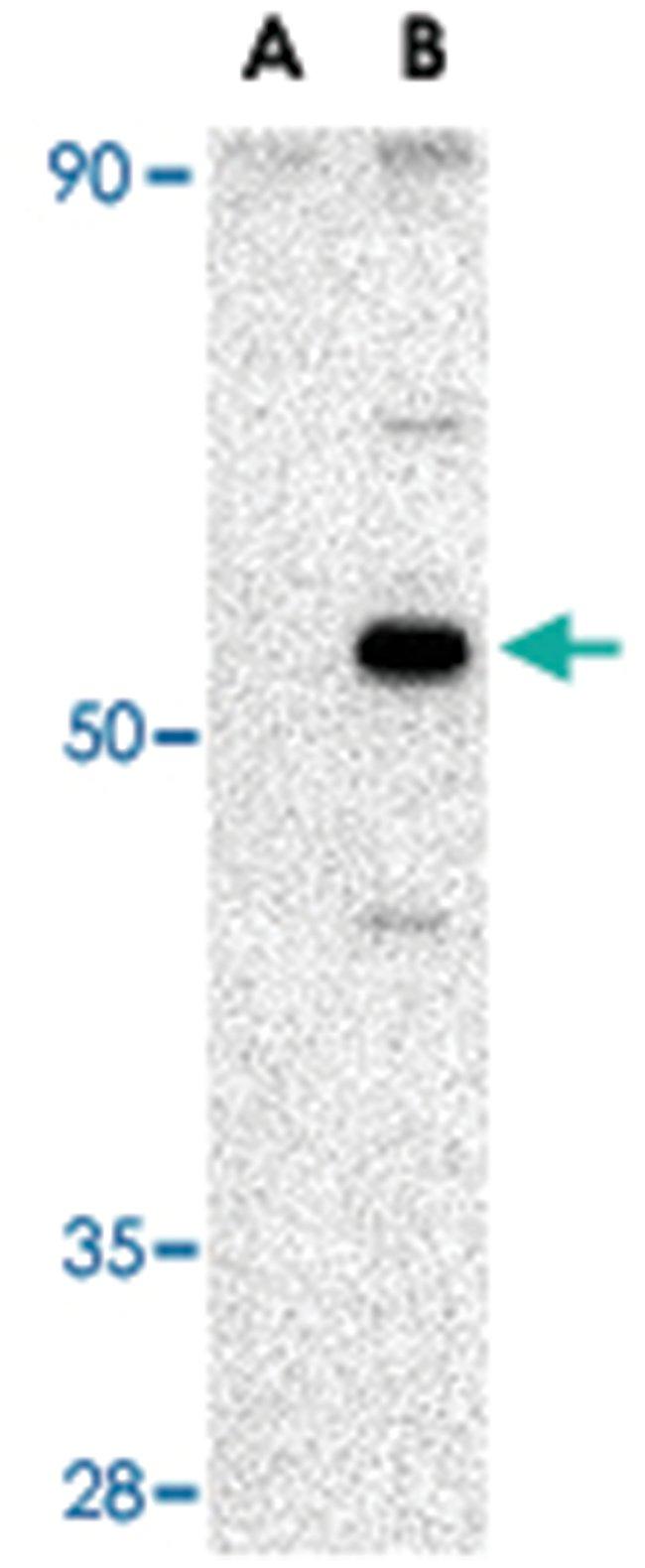 AVEN Rabbit anti-Human, Mouse, Rat, Polyclonal Antibody, Abnova 100µg;