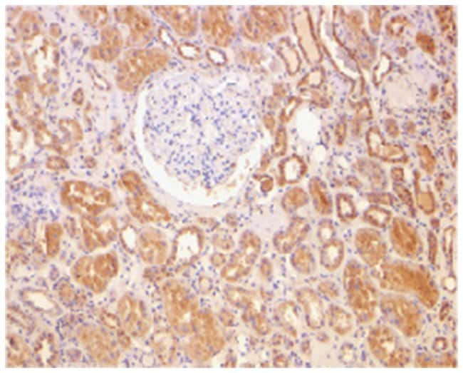 BCL2 Rabbit anti-Human, Mouse, Polyclonal Antibody, Abnova 100µg;