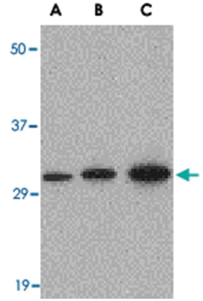 APH1A Rabbit anti-Human, Mouse, Polyclonal Antibody, Abnova 100µg;