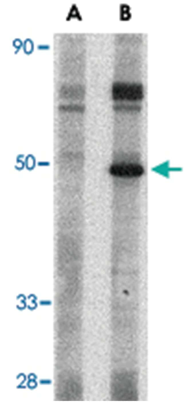 Crlf2, Rabbit, Polyclonal Antibody, Abnova 100µg; Unlabeled:Life Sciences