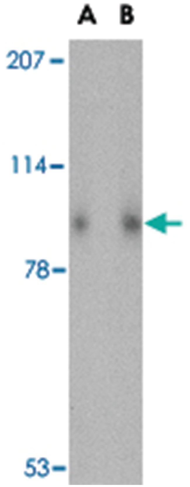 SLITRK1 Rabbit anti-Human, Mouse, Rat, Polyclonal Antibody, Abnova 100µg;