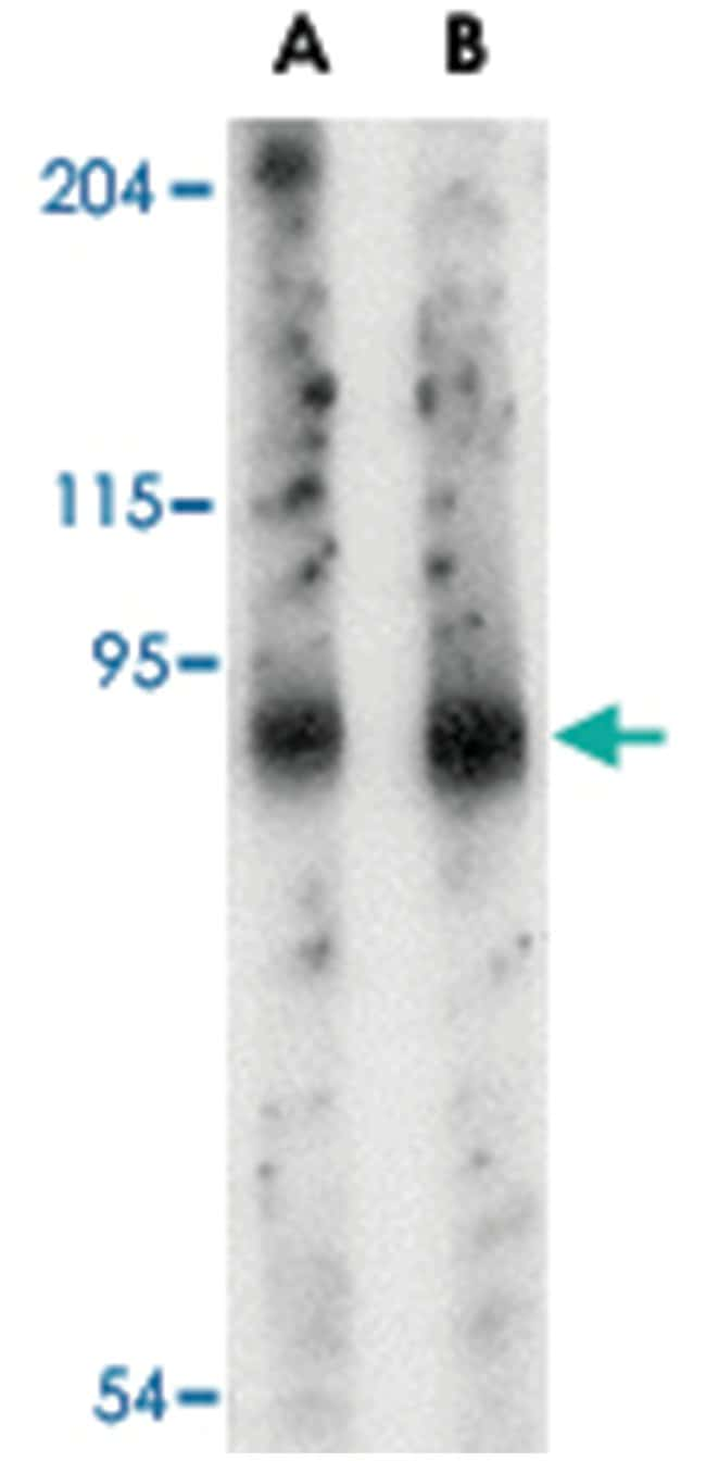 SLITRK6 Rabbit anti-Human, Mouse, Rat, Polyclonal Antibody, Abnova 100µg;