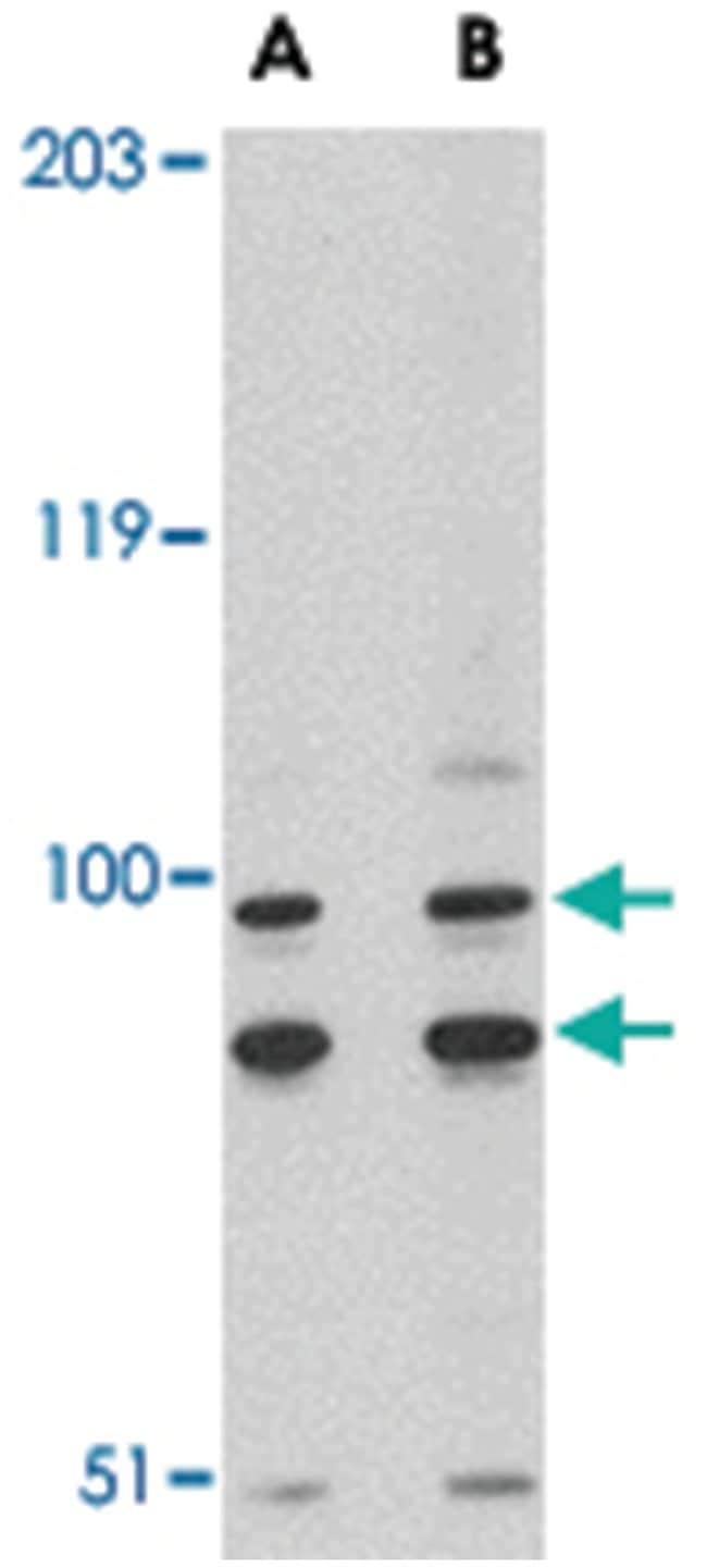 SATB1 Rabbit anti-Human, Mouse, Rat, Polyclonal Antibody, Abnova 100µg;