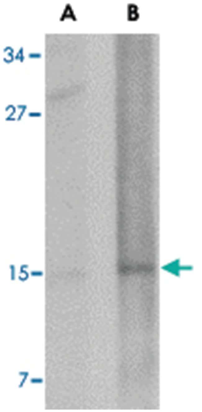 NANOS2 Rabbit anti-Human, Mouse, Rat, Polyclonal Antibody, Abnova 100µg;