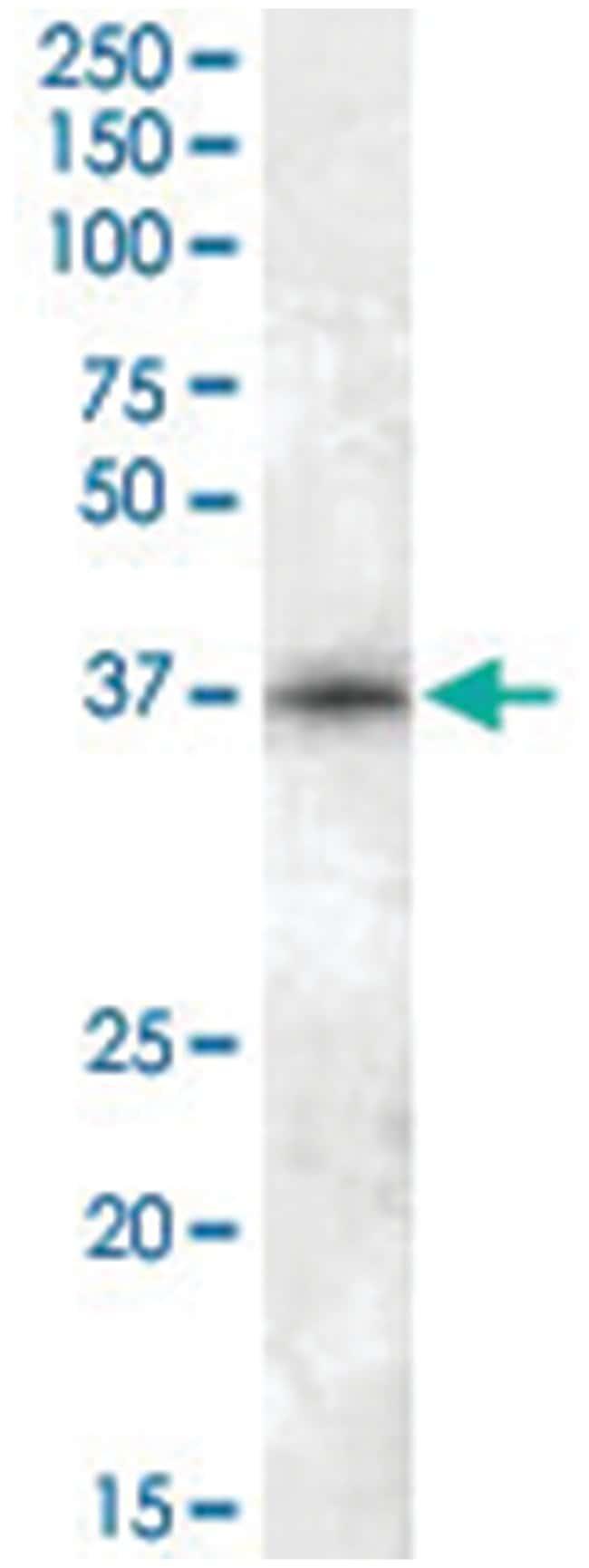 CDK10, Goat, Polyclonal Antibody, Abnova 100µg; Unlabeled:Life Sciences