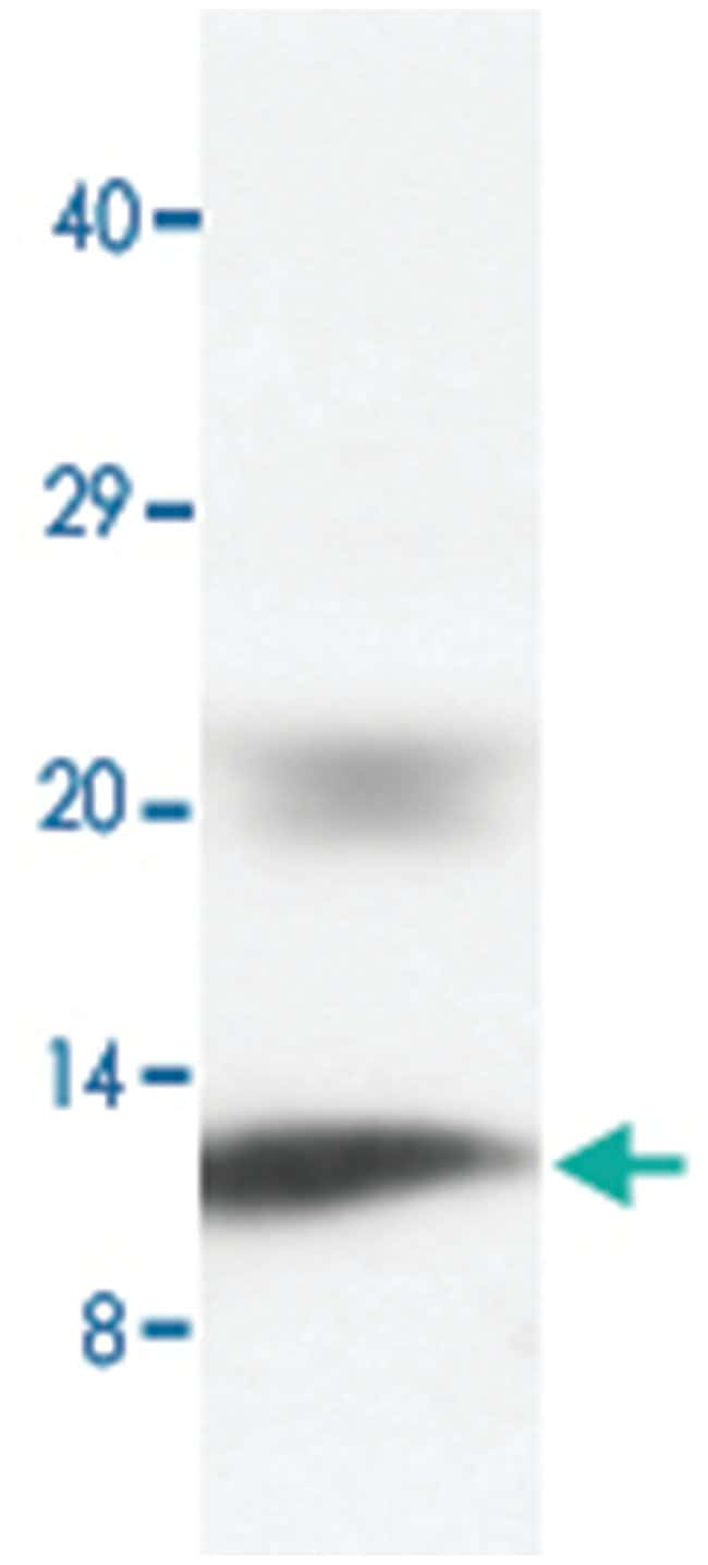 PLN Rabbit anti-Human, Mouse, Rat, Polyclonal Antibody, Abnova 100µg;