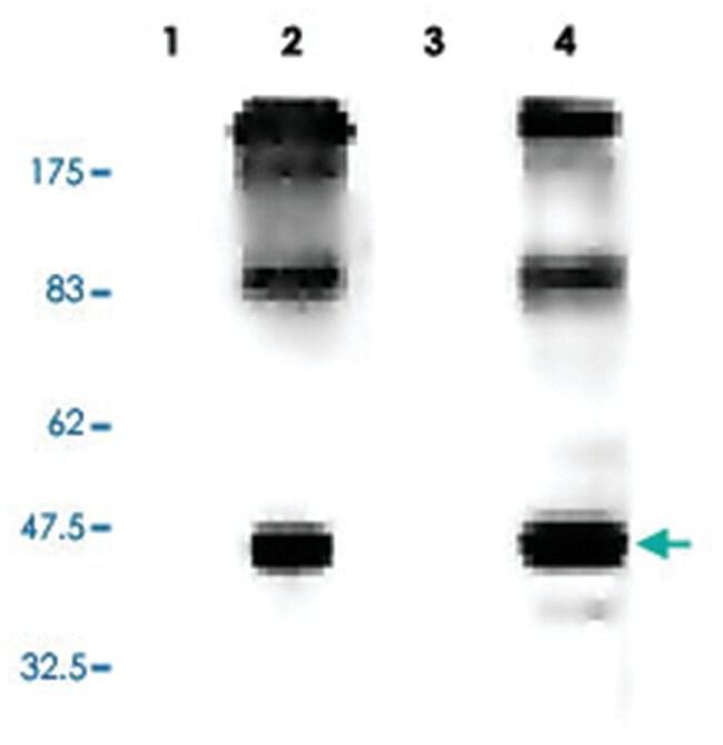 ADIPOR1 Rabbit anti-Human, Polyclonal Antibody, Abnova 100µL; Unlabeled:Life