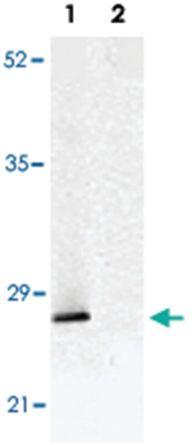 TP53INP1 Rabbit anti-Human, Mouse, Rat, Polyclonal Antibody, Abnova 100µg;