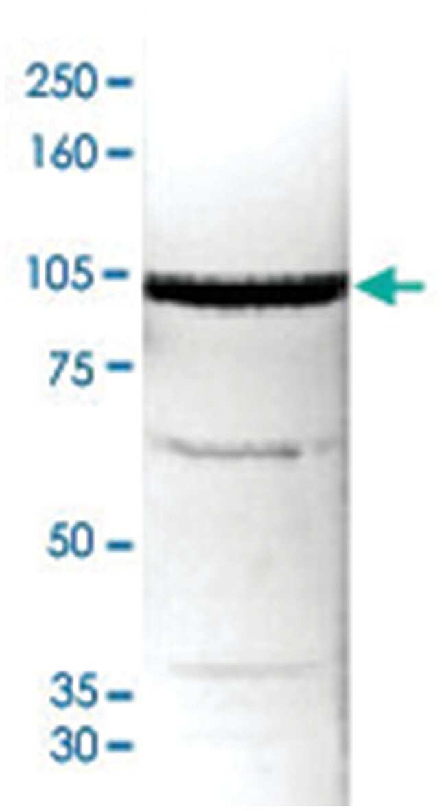 AOF2 Rabbit anti-Human, Polyclonal Antibody, Abnova 50µg; Unlabeled:Life