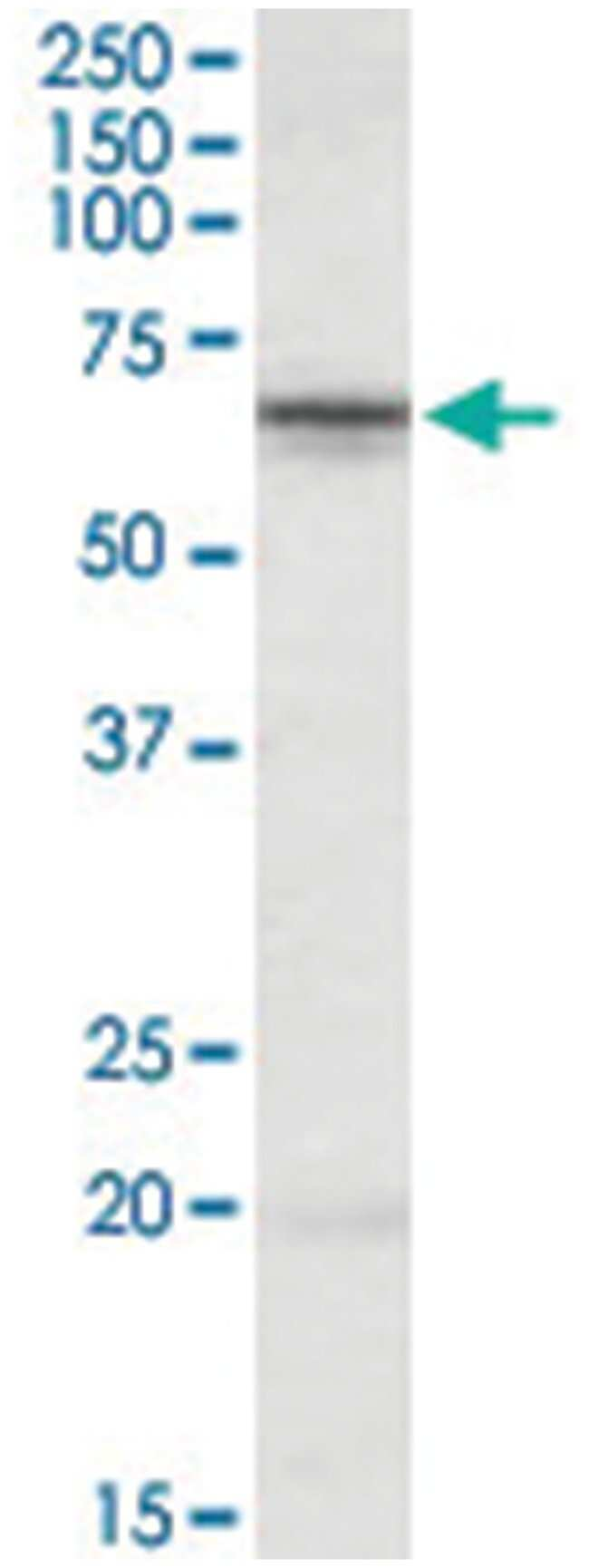 STK39, Goat, Polyclonal Antibody, Abnova 100µg; Unlabeled:Life Sciences