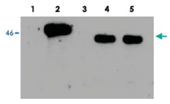 EGLN1 Rabbit anti-Human, Polyclonal Antibody, Abnova 100µL; Unlabeled:Life