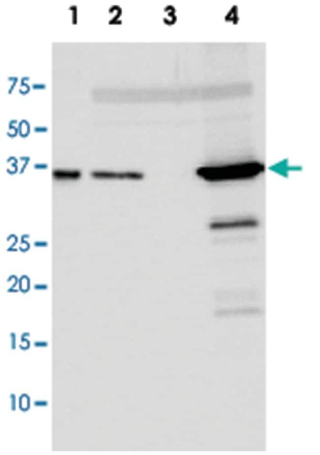 Escherichia coli RecA, Rabbit, Polyclonal Antibody, Abnova 50µg; Unlabeled:Life