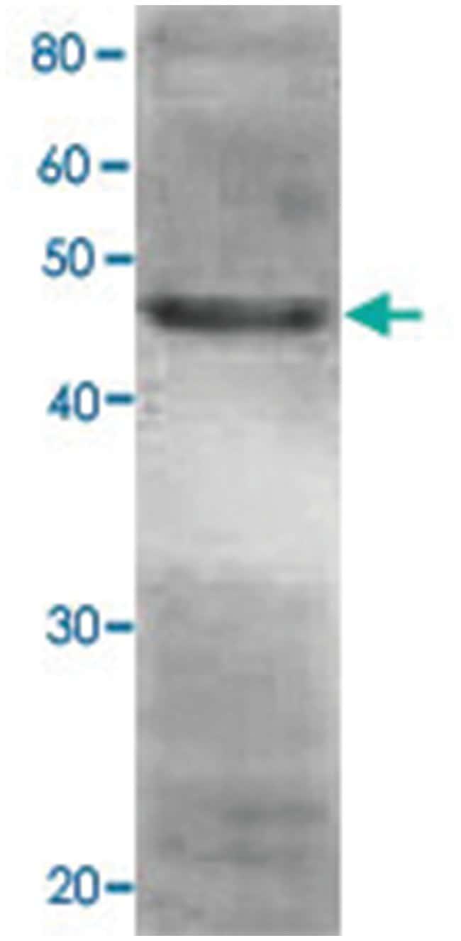RPN7, Rabbit, Polyclonal Antibody, Abnova 100µL; Unlabeled:Life Sciences