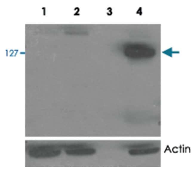 TNKS2 Goat anti-Human, Polyclonal Antibody, Abnova 100µg; Unlabeled:Life