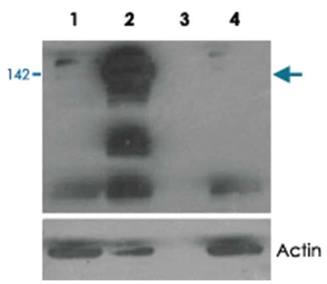 TNKS, Goat, Polyclonal Antibody, Abnova 100µg; Unlabeled:Life Sciences