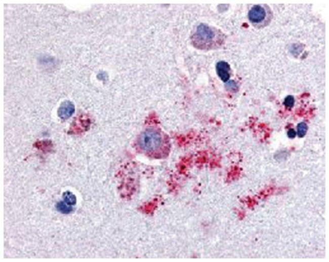 BAI1 Rabbit anti-Bovine, Human, Monkey, Mouse, Polyclonal Antibody, Abnova