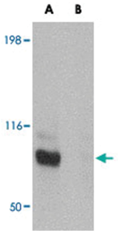 JPH3 Rabbit anti-Human, Mouse, Rat, Polyclonal Antibody, Abnova 100µg;